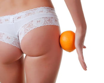 Cellulite : causes, types et traitements anti-cellulite