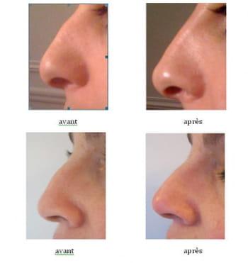 Zoom sur les rhinoplasties sans bistouri journal des femmes - Bosse sur le nez apres coup ...