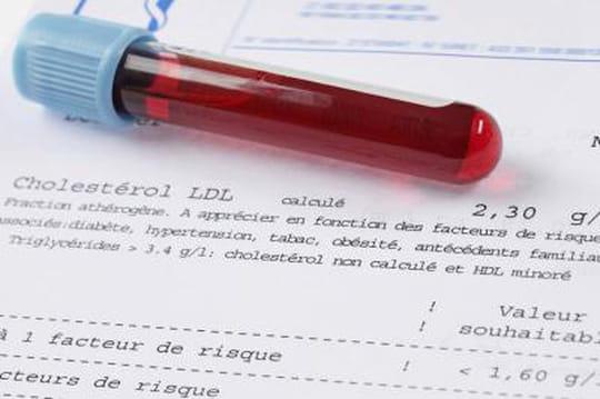 les Effets de l'Augmentation de l'Hormone Lutéinisante
