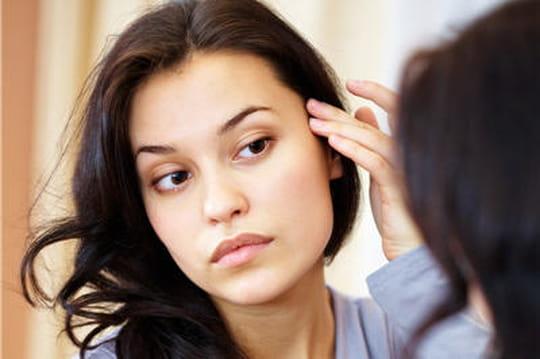 Alopécie féminine