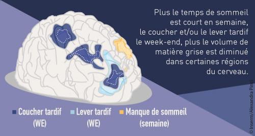 Comment le manque de sommeil altère leur cerveau — Adolescents