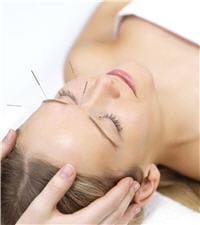 l'acupuncture peut aider à faire face aux crises de migraine, en complément de