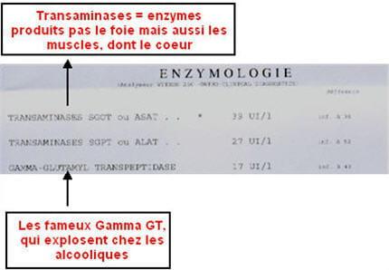 gamma gt: