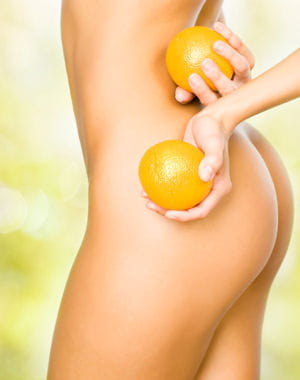 le peau d'orange complexe de nombreuses femmes.