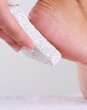 soin des pieds lutter contre la corne chouchoutez vos pieds journal des femmes. Black Bedroom Furniture Sets. Home Design Ideas